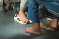 Ny riskgradering ska skydda diabetespatienters fötter